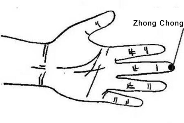 ZhongChong acupoint