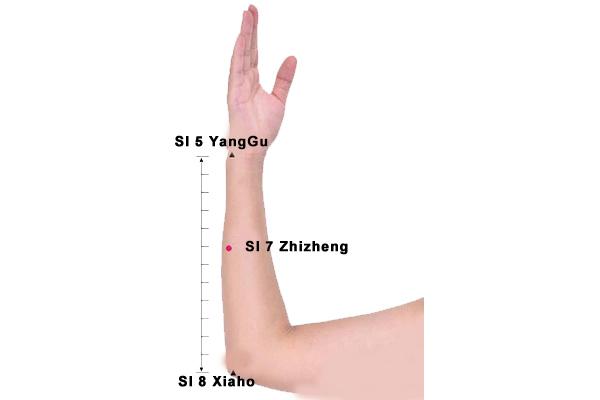 Zhizheng point