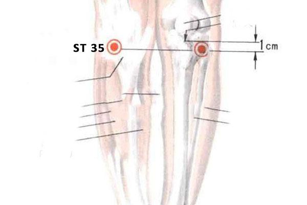 ST 35 point dubi